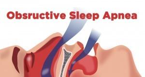 obstructive sleep apnea didgeridoo natural sleep apnea therapy