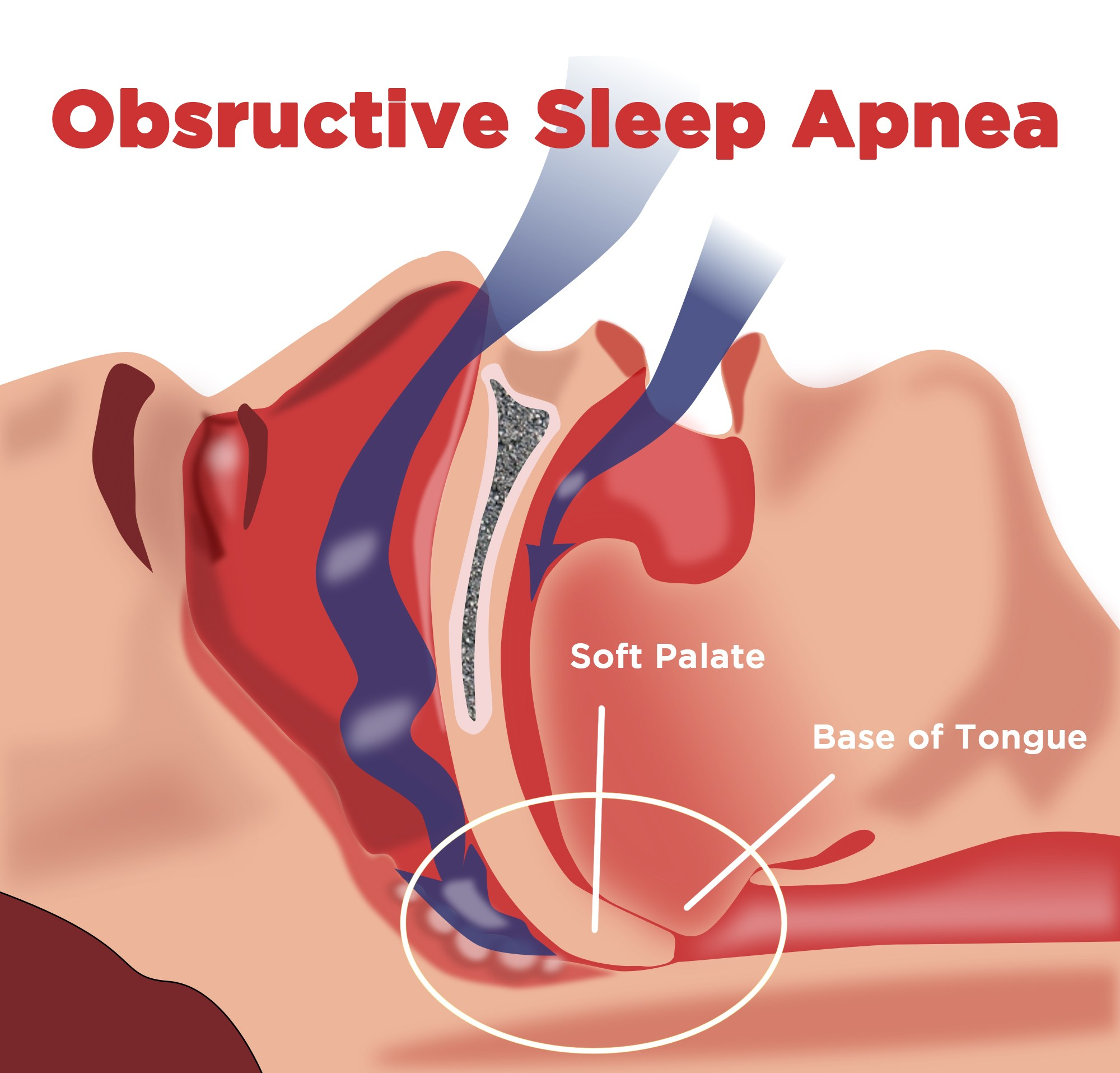 In Sleep Apnea In Teen 41